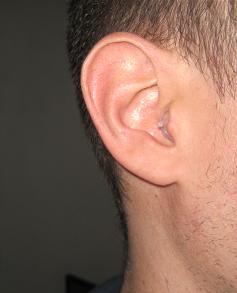 Eardial dans l'oreille
