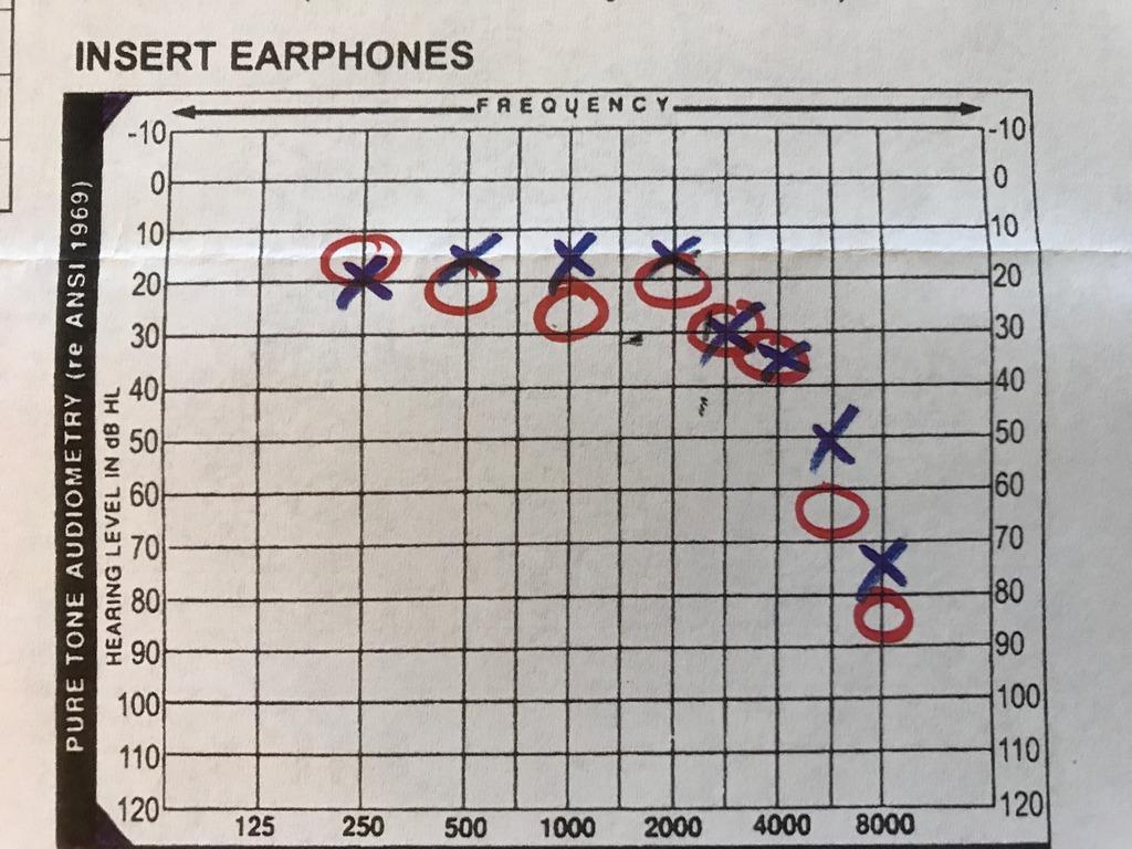 Audiogram%20-%201_1.jpg