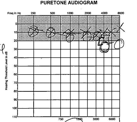 audiogram.jpg