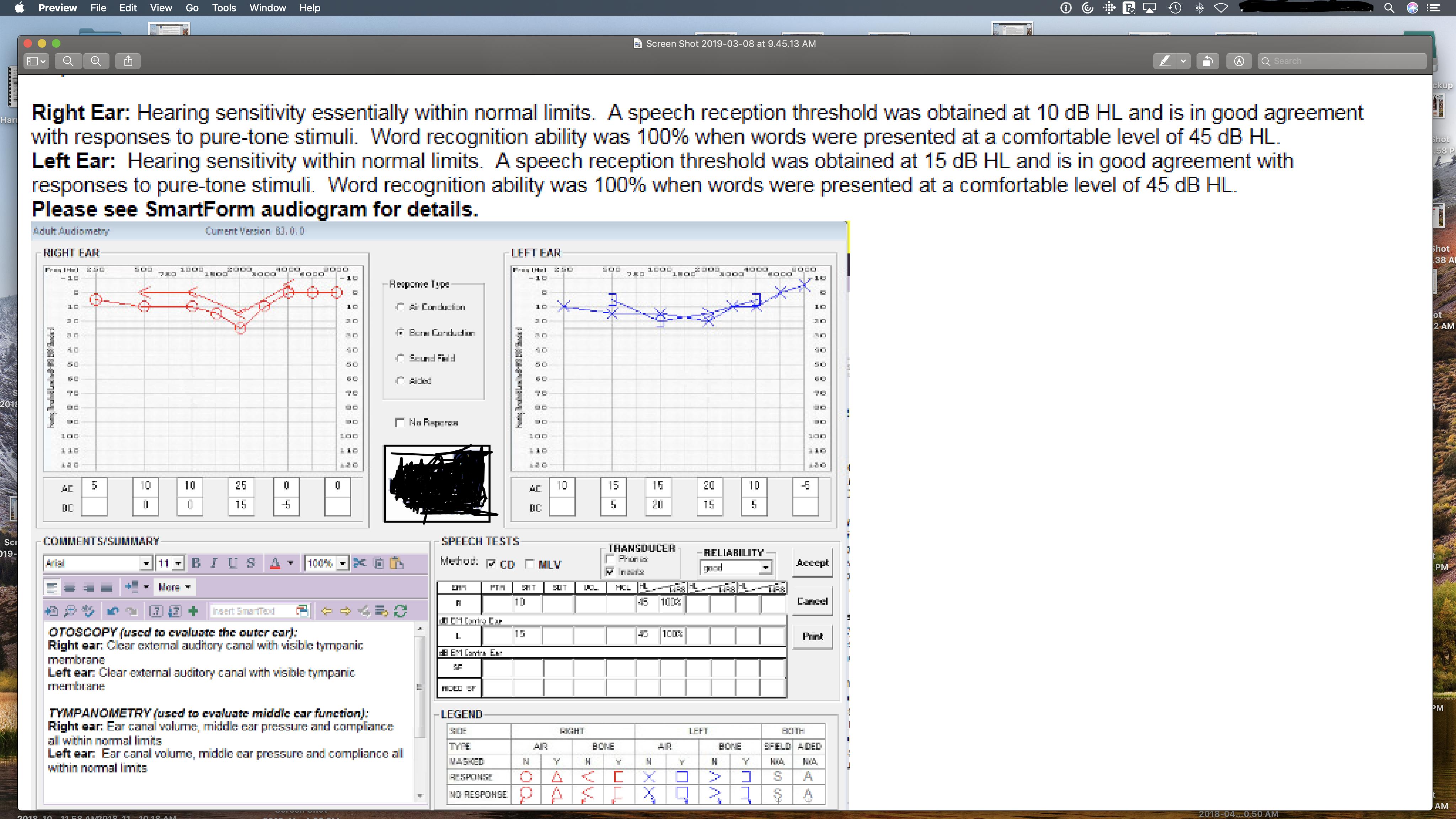 audiogram.png