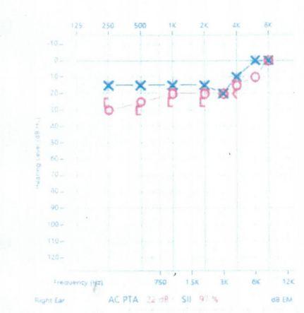 audiogram01.JPG