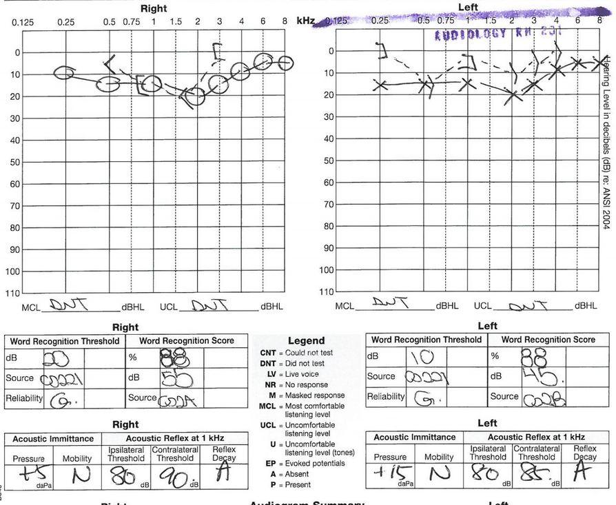 audiogram02.JPG