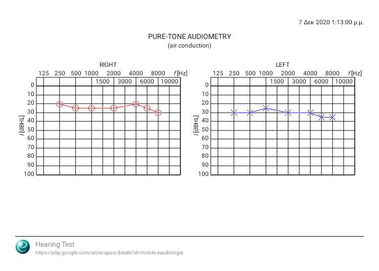 audiogram_20201207_012751.jpg