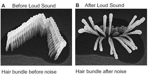 Before-After_Loud Sound.jpg