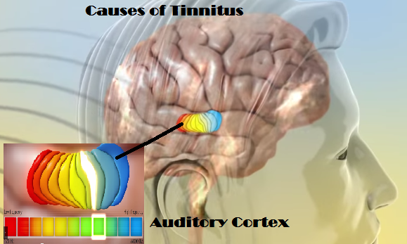 causes-of-tinnitus.png