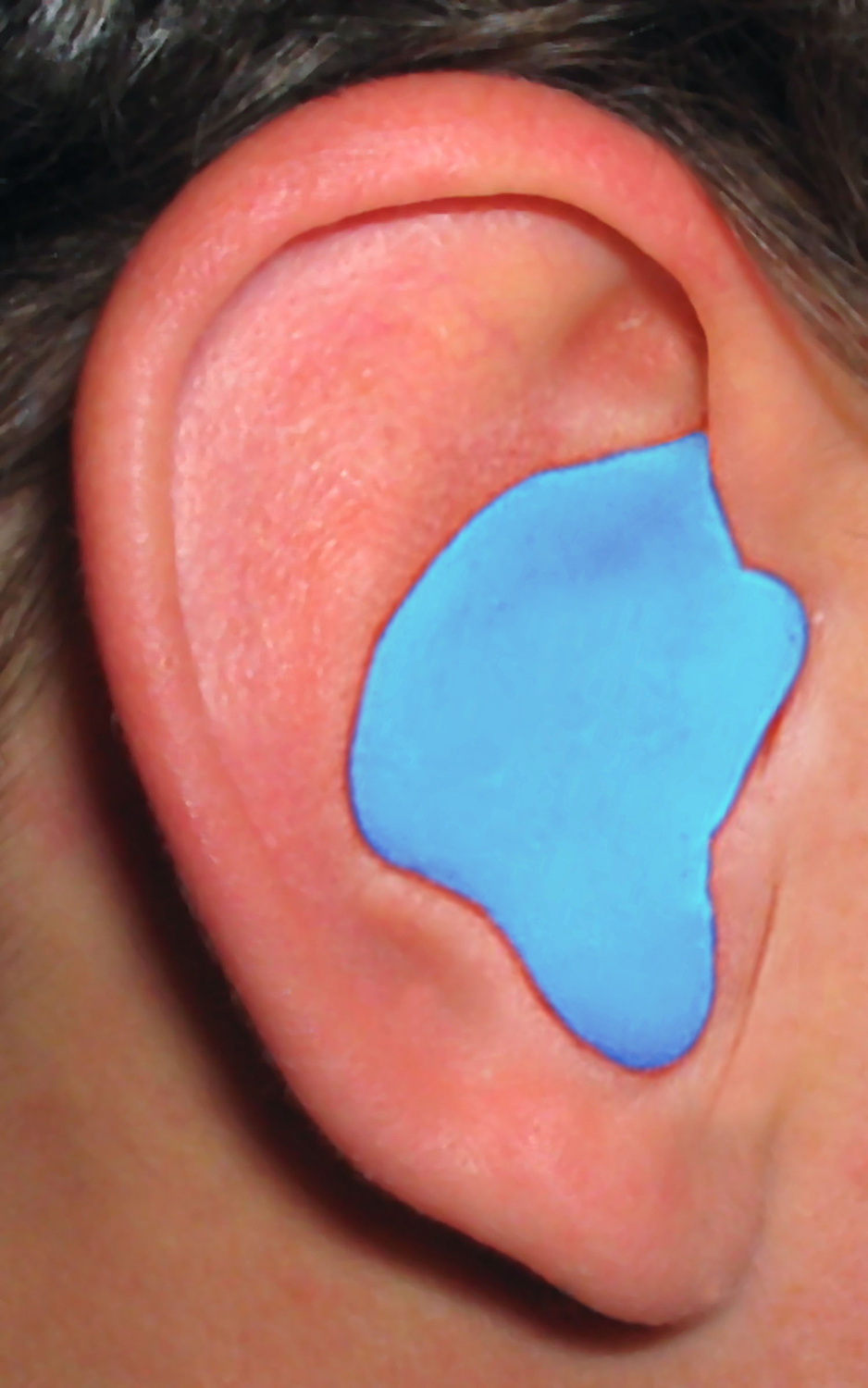 Custom%20Molded%20Plugs_CEP_Ear_Blue.jpg