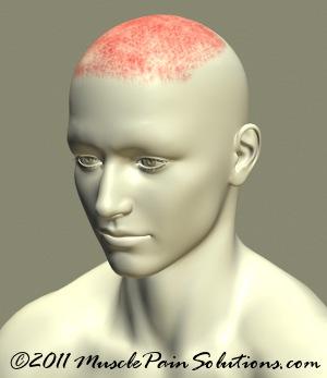 headache-on-top-of-head.jpg