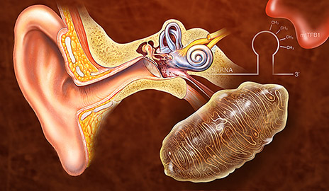 hearing-genetic-mod464.jpg