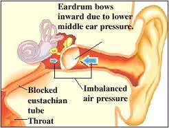 info-on-blocked-Eustachian-Tube-Treatment.jpg