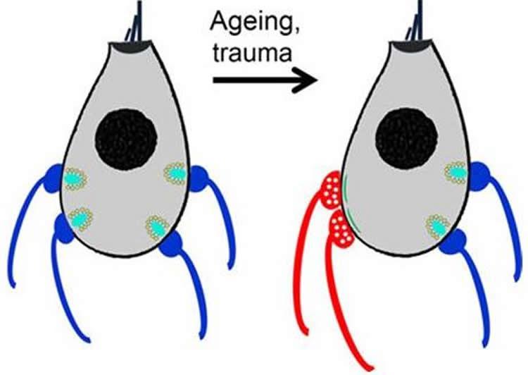 inner-ear-changes-aging.jpg