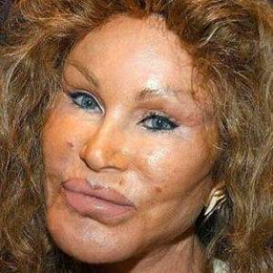 most-obvious-celebrity-plastic-surgery.jpg