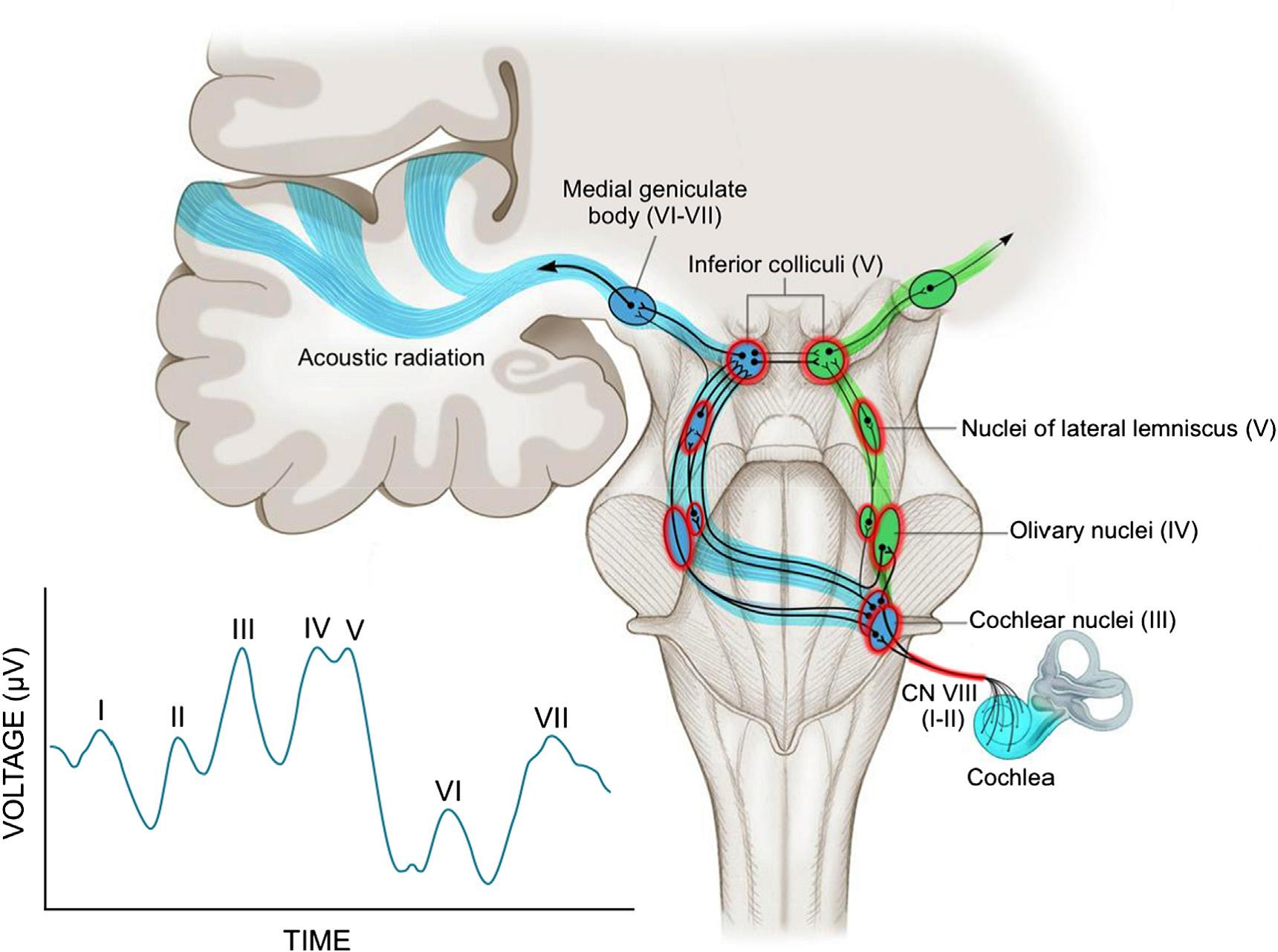 the-auditory-pathway-and-normal-auditory-brainstem-response-abr.jpg