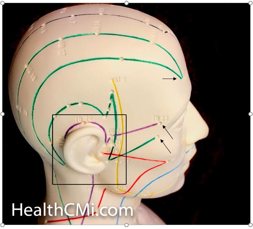 Tinnitus Acupuncture Ear-Scalp Location.JPG